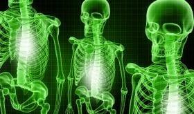 L'arthrose : seconde cause d'invalidité en France