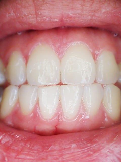Dents - Dentiste - Santé bucco-dentaire personnes âgées