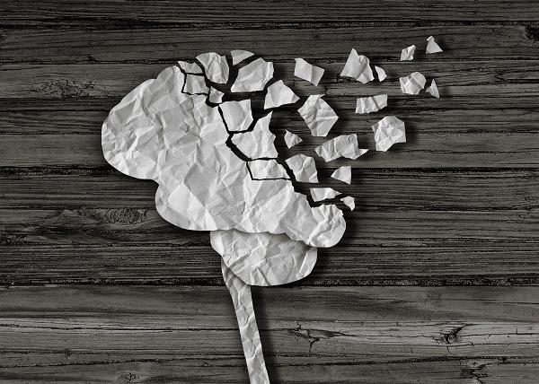 Alzheimer - mémoire