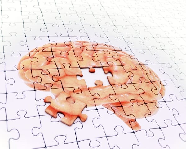alzheimer-sante-cerveau-maladie d'alzheimer