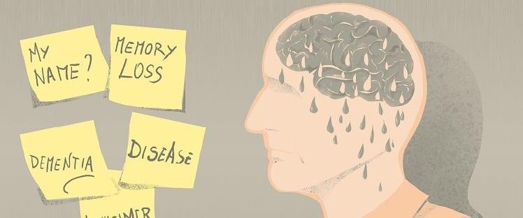 Maladie d'Alzheimer : quelle perception en ont les Français ?