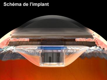 Schéma de l'implan IMT de VisionCare