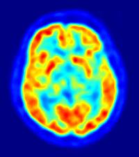 stimulation cérébrale profonde Alzheimer