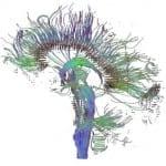 Une partie du cerveau humain resterait «jeune» malgré le vieillissement