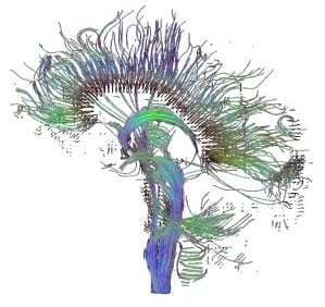 brain300-2