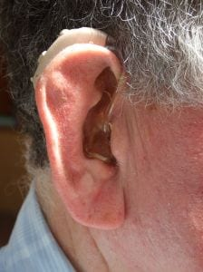 hearing-impaired-1016277-m