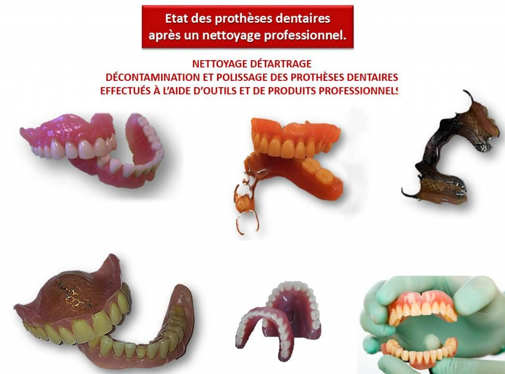 PROTHESES DENTAIRE PROPRES
