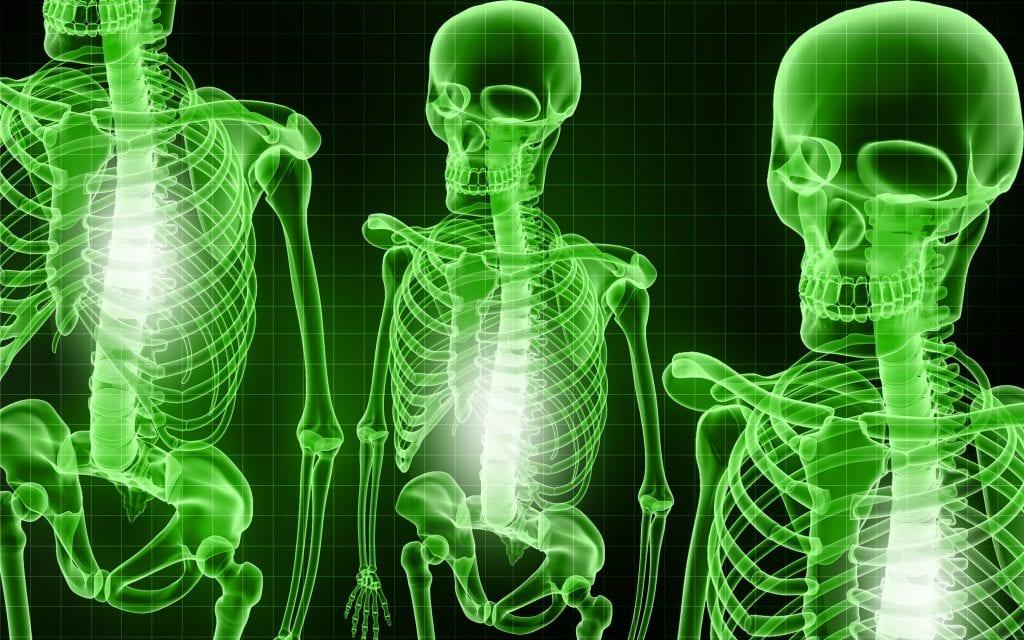 Squelette Arthrose