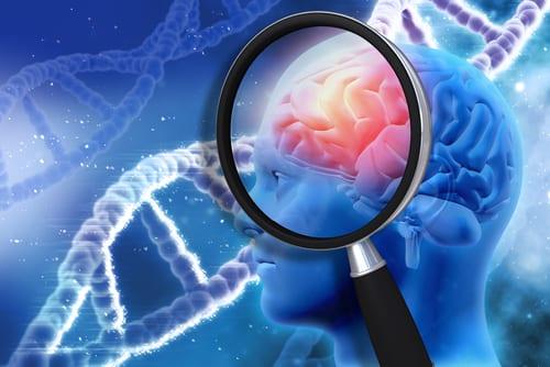 Alzheimer : où en est la recherche ?