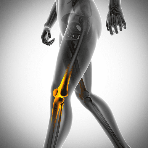 arthrose-sante-genou