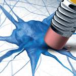 Maladies neurodégénératives - Alzheimer