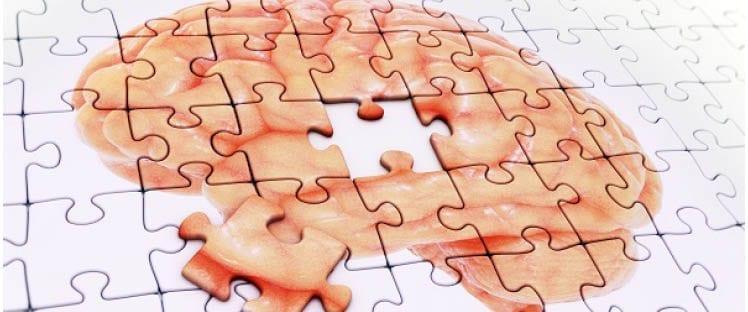 Alzheimer-santé-cerveau-Une
