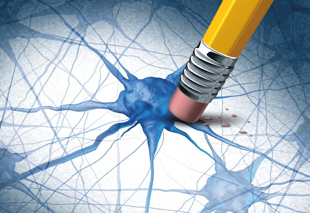 Maladie neuro-dégénérative - neurones - alzheimer