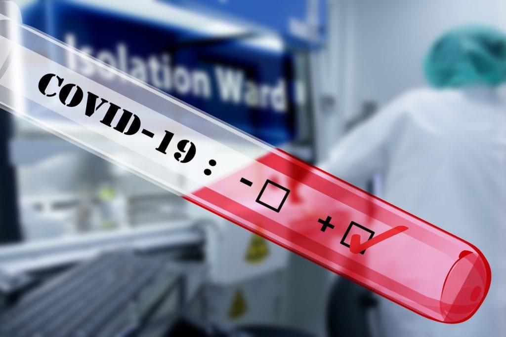 test - dépistage - virus - covid 19